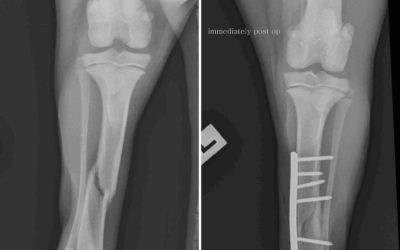 Fracture Repair at South Cranbourne Veterinary Surgery